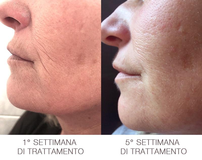 rivilux-risultati-trattamento-contorno-labbra